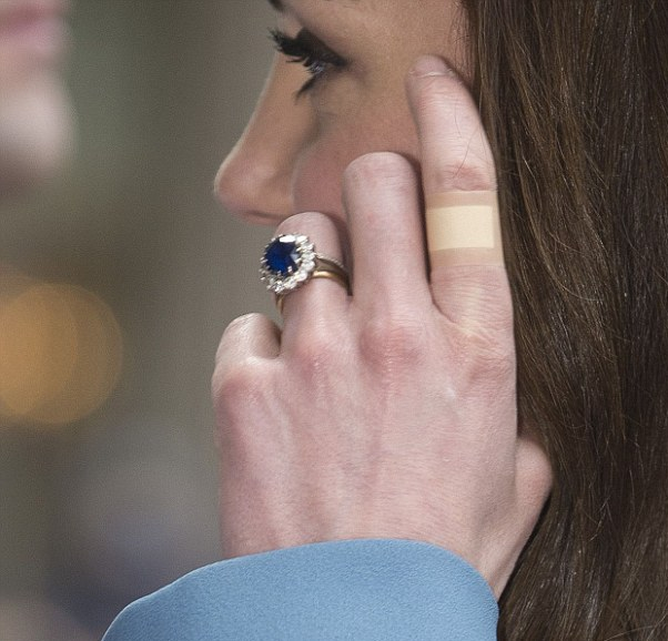 Что происходит с руками Кейт Миддлтон?